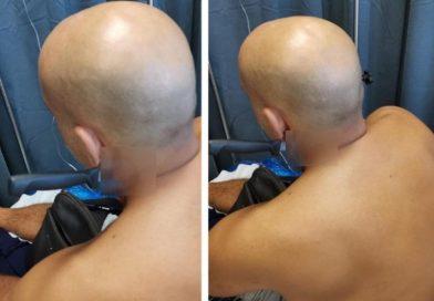 Ψυχώ! Τρεις ώρες κυκλοφορούσε με το μαχαίρι καρφωμένο στον λαιμό του (ΕΙΚΟΝΕΣ)